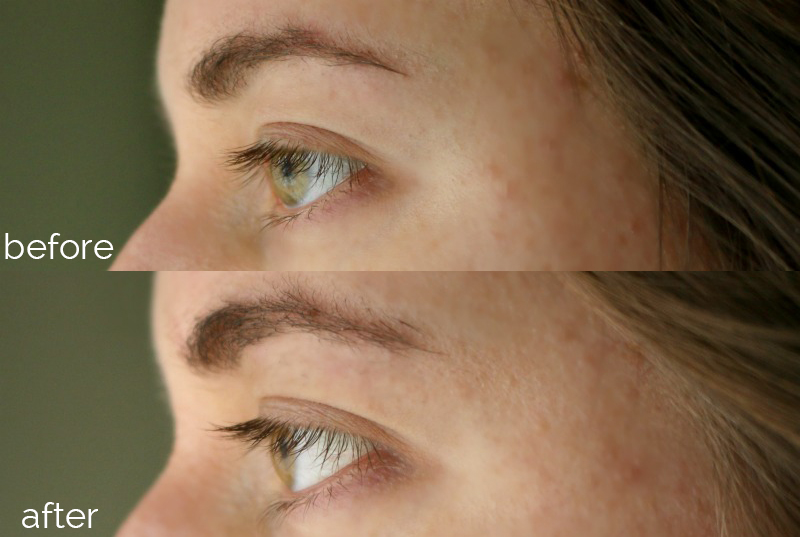 RapidLash RapidBrow Before After