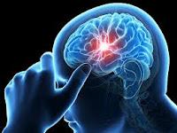 apa nama obat herbal stroke hemoragik?