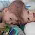 Kembar Siam Definisi Gejala Jenis Penyebab dan Penanganan serta Pencegahan Kembar Siam Menurut Ilmu Kedokteran