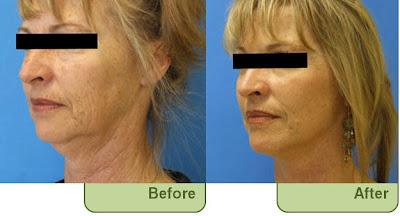 Sharma Facial Plastic Surgery Blog November 2011