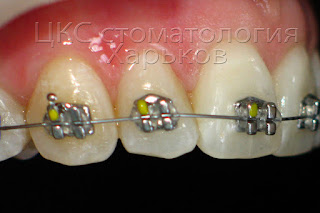На фото зубы с фиксированными брекетами и установлена дуга