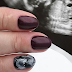 Pregnant Women Have Their Nails Painted With Their Ultrasound Pictures, And It's Amazing