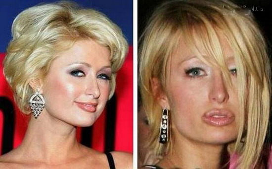 Hollywood Hot Celebrities With Plastic Surgery Cosmetic