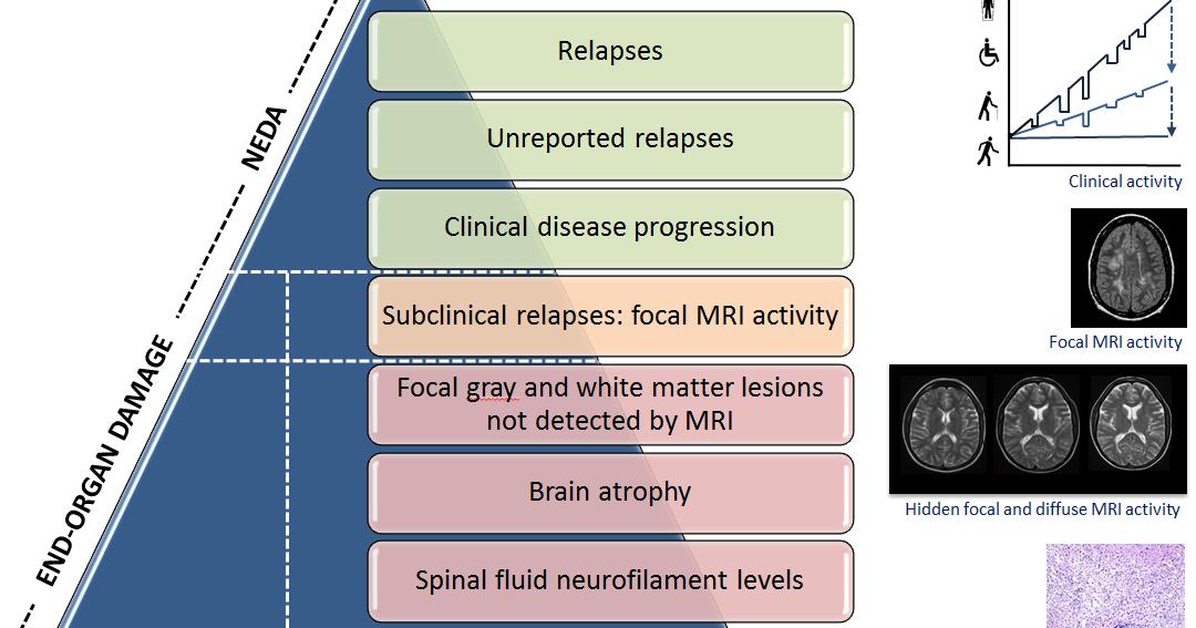 Analysis of semantic priming in multiple sclerosis