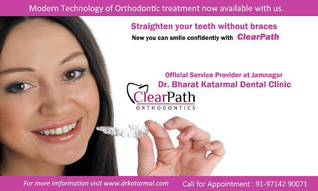 orthodontic dental treatment at Jamnagar dr. bharat katarmal dental clinic