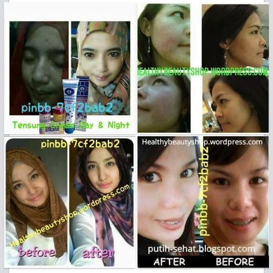 Obat Pelangsing Perut Buncit Alami Untuk Pria Wanita Ampuh: DAY & NIGHT WHITENING CREAM TENSUNG « Skin Care Cosmetic