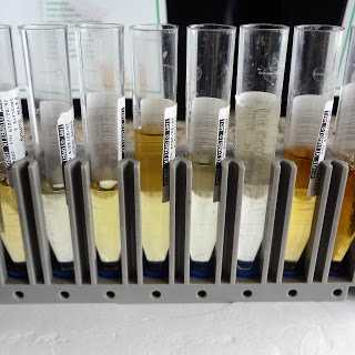 idrar sodyum