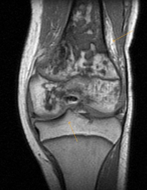 Subacute osteomyelitis-Epiphyseal Involvement - Sumer's Radiology Blog