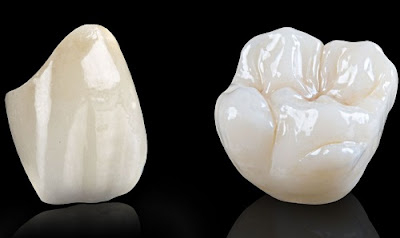 làm răng sứ có đắt không -6