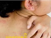 Tips menghilangkan dan Mengobati gatal secara alami dan tradisional dengan permanen