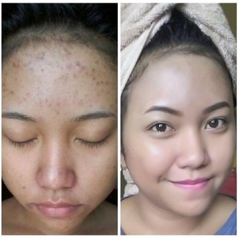 Cara Menghilangkan Bekas Jerawat Secara Alami Dalam Waktu 3 Hari Solusi Kesahtan Dan Kecantikan Firmax3 Cream