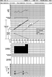 contoh-pengisian-partograf