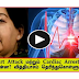 What is the difference between Heart Attack and ardiac Arrest?