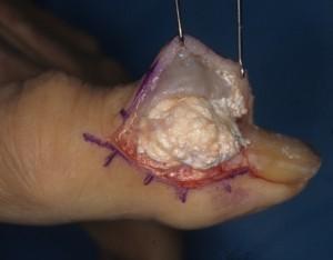 صورة حقيقية لجرح مفتوح لمرض النقرس