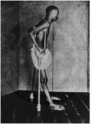 Ασιάτισα γυναίκα με beriberi. (Library of Medicine)