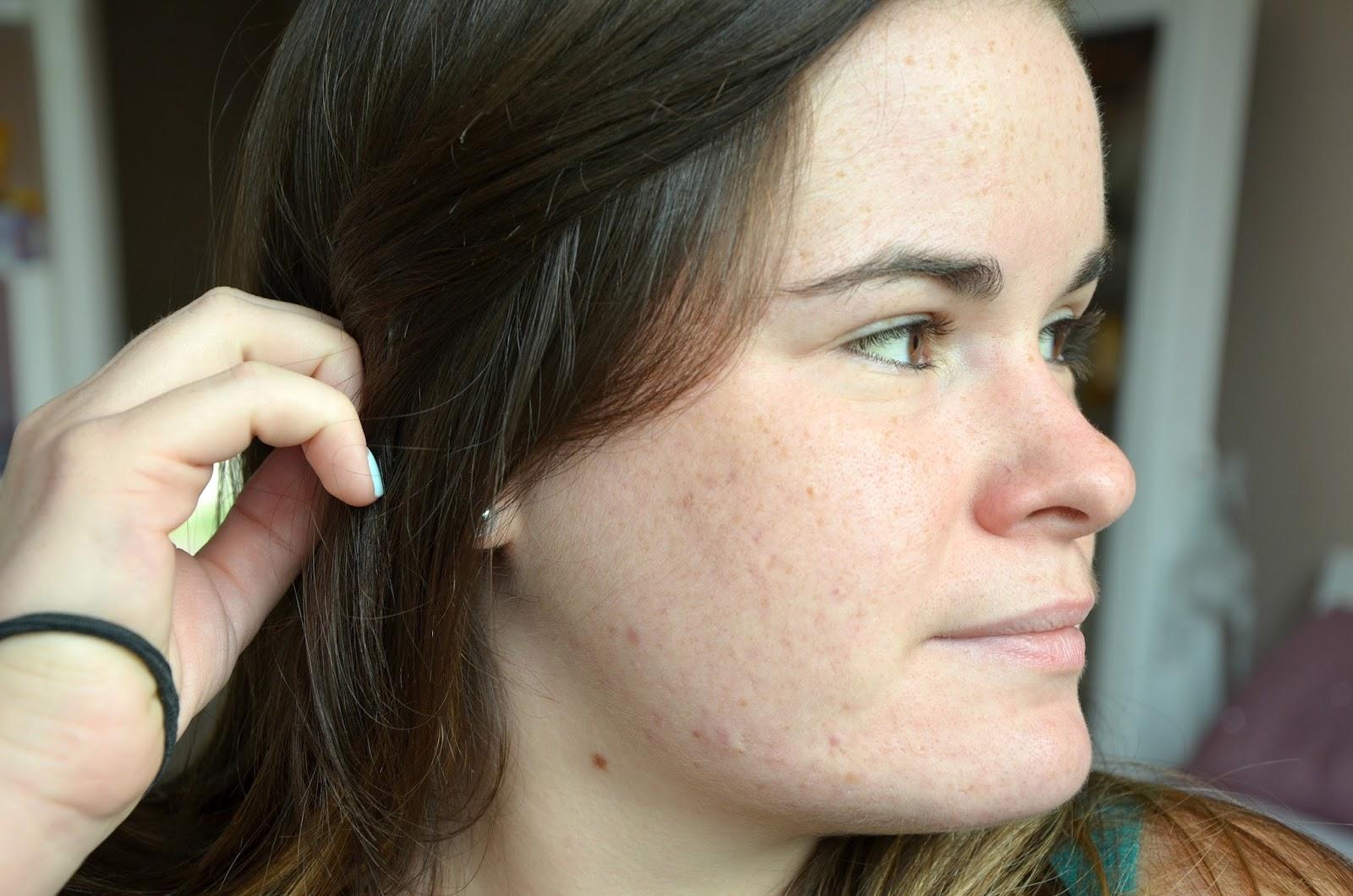 bilan de mon sixième mois de traitement contre l'acné joue droite