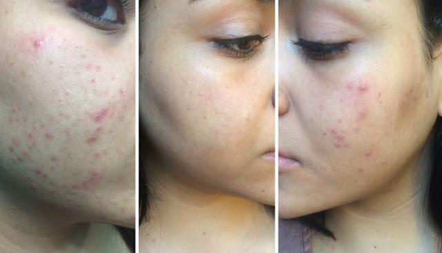 navan skin care supplement reviews
