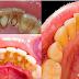 ခ်ဳိးကပ္္ေနေသာ သြားေခ်းေတြကို သြားဆရာဝန္ဆီ သြားစရာမလိုပဲ လြယ္လြယ္ေျဖရွင္းရေအာင္