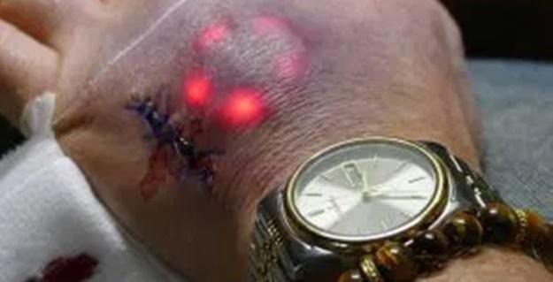 Conheça o primeiro brasileiro a implantar o chip ( Sinal da Besta ) na pele – Veja a matéria