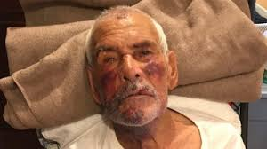 Arrest made in beating of 91-year-old who reportedly was told to 'go back to Mexico'