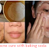 Acne cure with baking soda