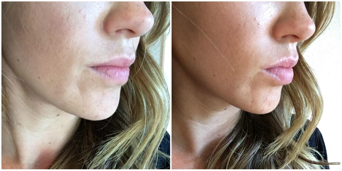 My Favorite Lip Plumper Tool by Colorado beauty blogger Eat Pray Wear Love