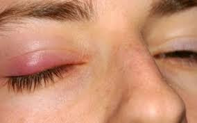 Obat Mata Bintitan Secara Alami, Aman, Dan Efektip