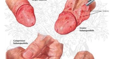 infecciones del pene masculino