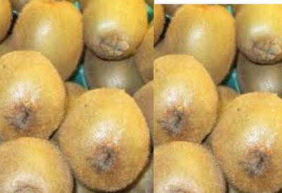 Kiwi Fruit Manage Blood Pressure level