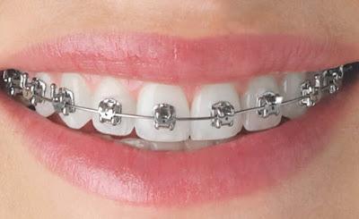 Tất cả những điều bạn cần biết về việc niềng răng