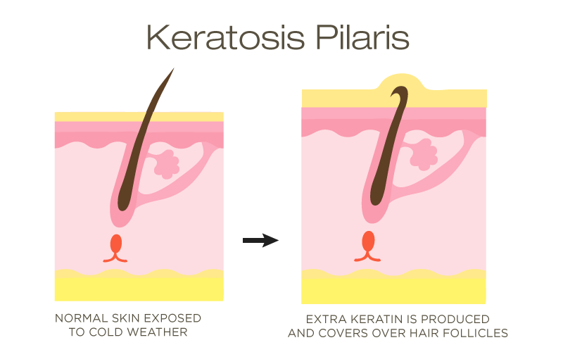 keratin buildup on facial skin