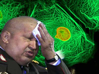 Hugo Chávez enfermo de cáncer