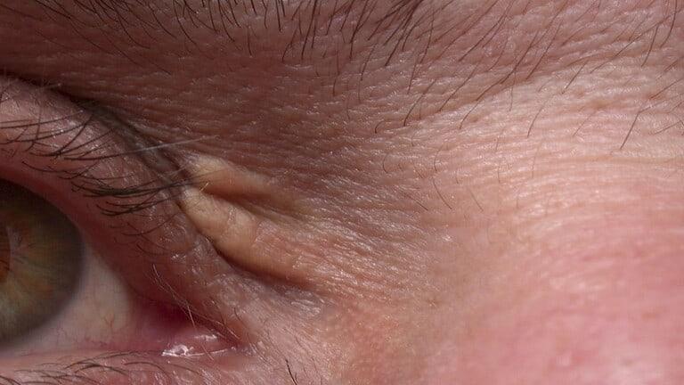 نمو-دهني-في-الجلد-يكشف-عن-خطر-قد-يكون-مميتا