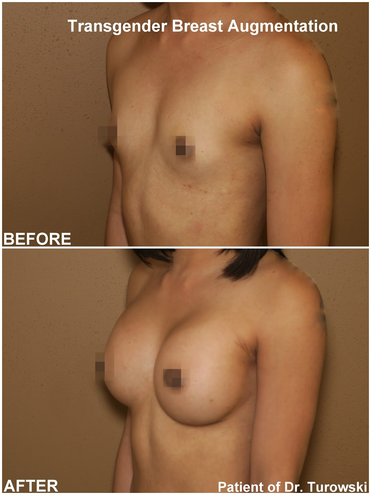 Male To Female Breast Growth