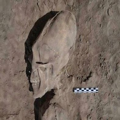 Extraordinary and probabl Alien skull recently found and it's an elongated skull found in Mexico.
