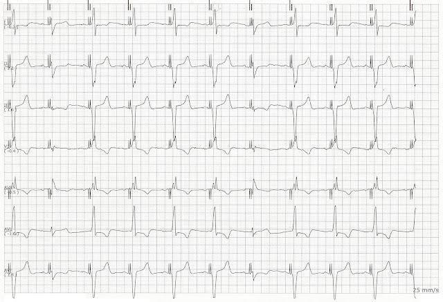 biventricular pacing for atrioventricular block and - 640×437