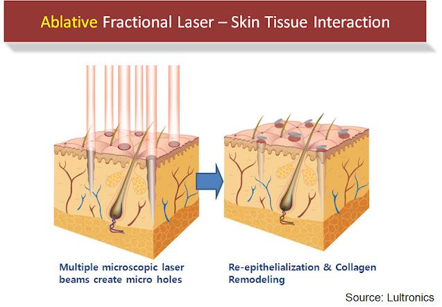 fractional co2 laser Singapore