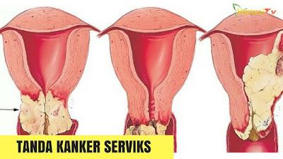 obat alami untuk kanker serviks
