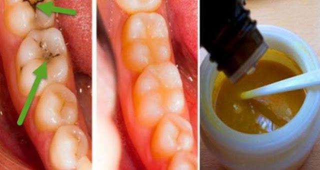 وصفة منزلية بسيطة للتخلص من تسوس الأسنان و تراكم الجير رائعة  جدا جربووها