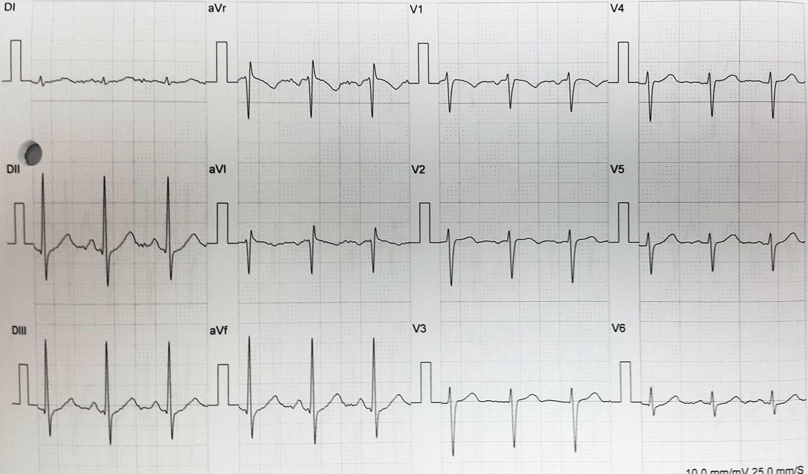 Definición de hipertensión septal asimétrica hipertrofia