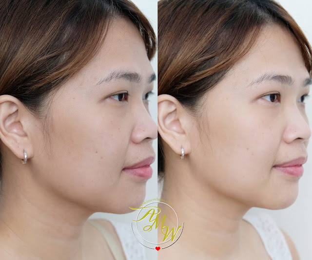 before and after photo of Estee Lauder NEW! Perfectionist Pro Rapid Firm + Lift Treatment with Acetyl Hexapeptide-8 review