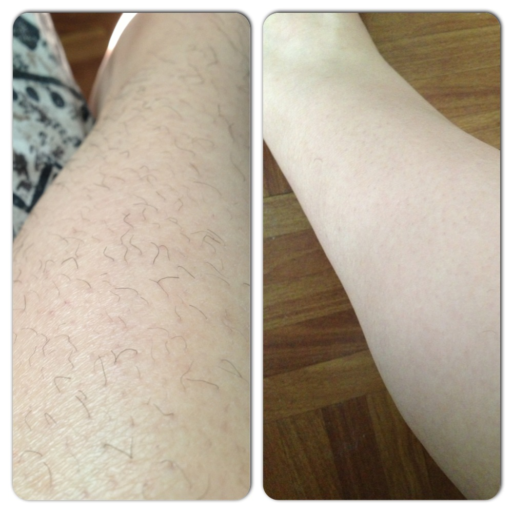 veet hair removal cream \u2013 roxi santiago Tanning Lotion Before and After before and after