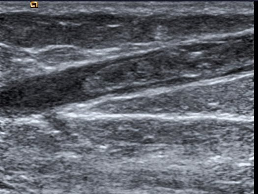 No ultrassom doppler venoso é possível ver o coágulo dentro da veia e diagnosticar a trombose.