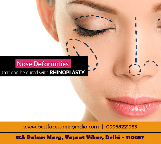 nose reshaping in Delhi