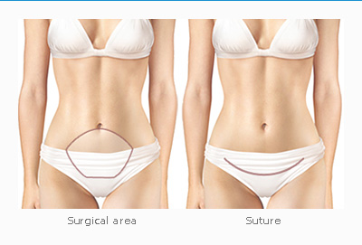 짱이뻐! - Korean Body Contour - Tummy Tuck