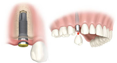 http://www.implantdentistindia.com/single-immediate-teeth.html