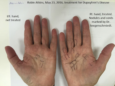 Dupuytren's disease, markup of nodules and cords on both hands