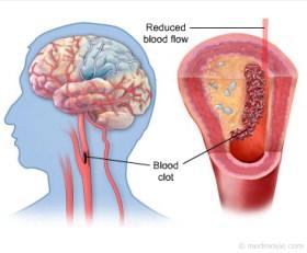 Obat Herbal Stroke, Obat Herbal Stroke ampuh, Obat Herbal Stroke mujarab, Obat Herbal Stroke alami, Obat Herbal Stroke manjur