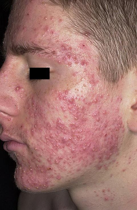 bioderma dermatita atopica definitie pastel