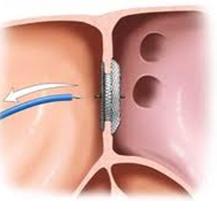 asd 2 esant hipertenzijai elektroforezės hipertenzija